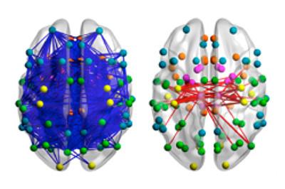 Connecties tussen neuronen in de hersenen